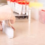 Okresowe badanie nasienia po wazektomi – czy warto?
