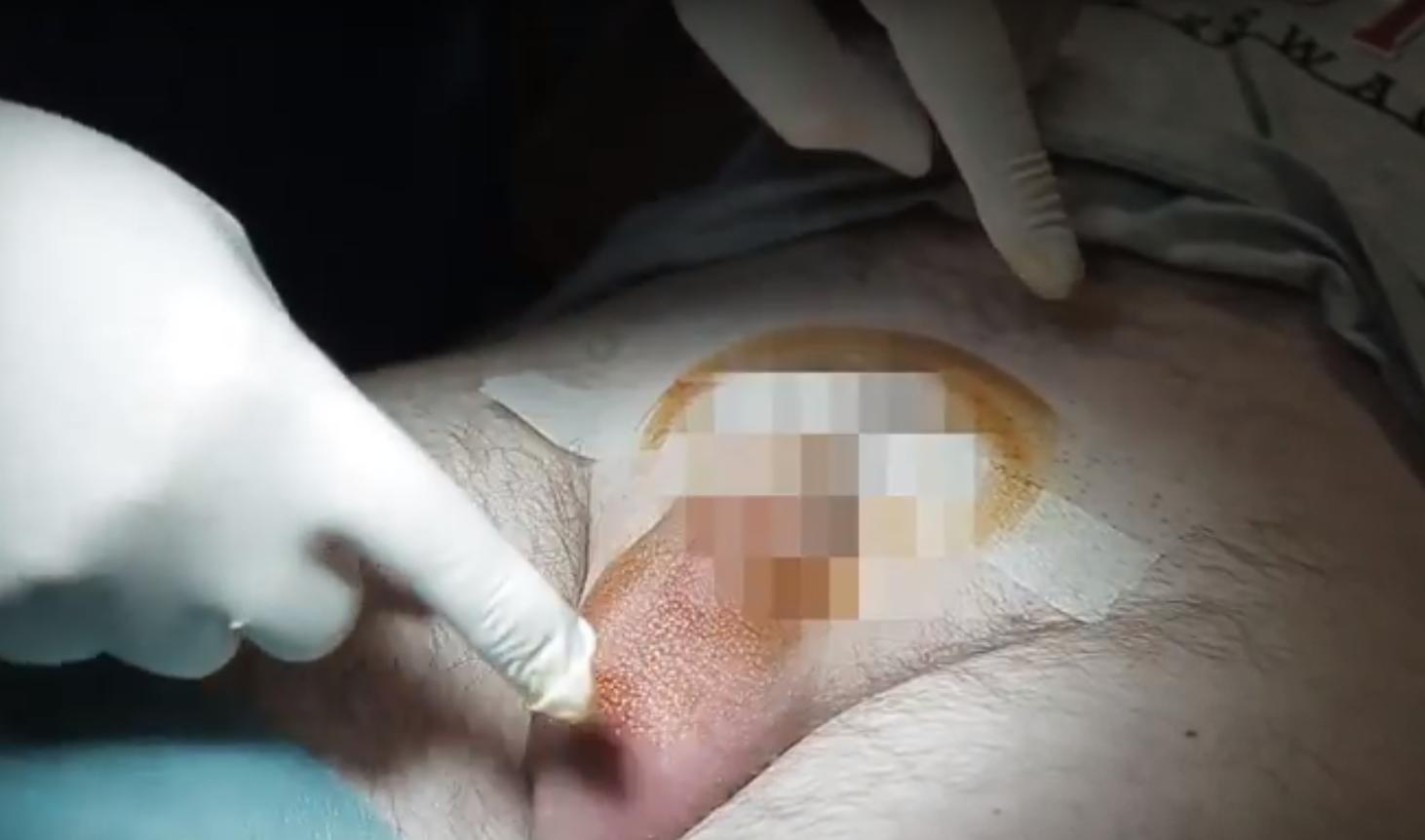 golenie-przed-zabiegiem-wazektomii